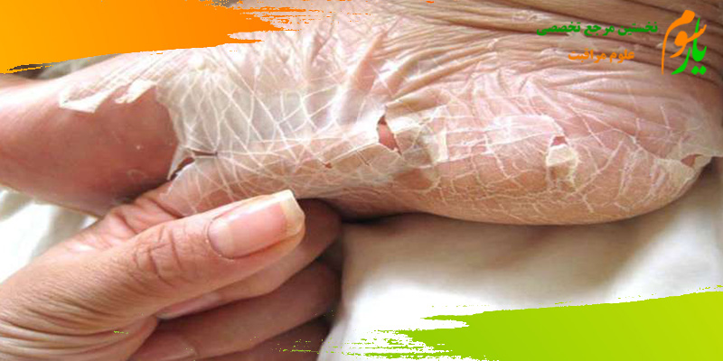 صدف پوستی