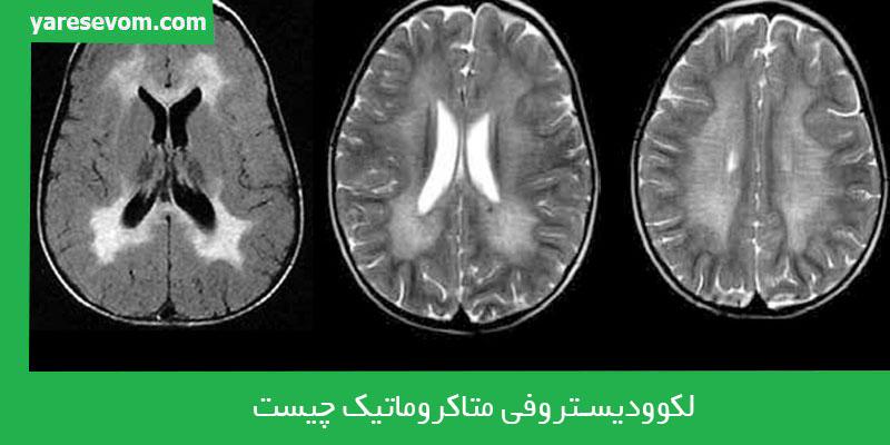 بیماری لکوودیستروفی متاکروماتیک